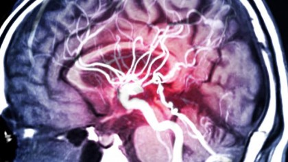 El coronavirus está causando trombos e ictus súbitos en pacientes jóvenes sanos [ENG]